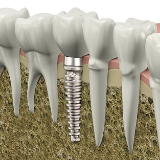 Reliable All on 4 Implants South Houston