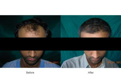 Solve your Baldness problem with Hair Transplantation surgery
