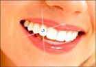 Get Comprehensive Dental Implant in Houston with Affordable Cost