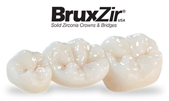 Dental Crowns in Knoxville