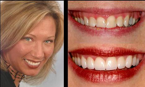 Local Cosmetic Dentistry in Quincy