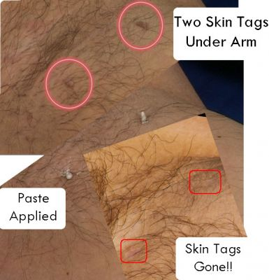 I have lots of  skin tags all over my body and want to get rid of them fast - sound familiar?