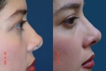 Restore Beauty of Youth by Facial Plastic Surgery