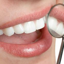 Cost Cosmetic Dentistry in Houston