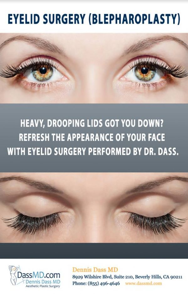 Recommended Eyelid Surgery in Beverly Hills CA