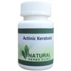 Natural Herbal Treatment For Actinic Keratosis