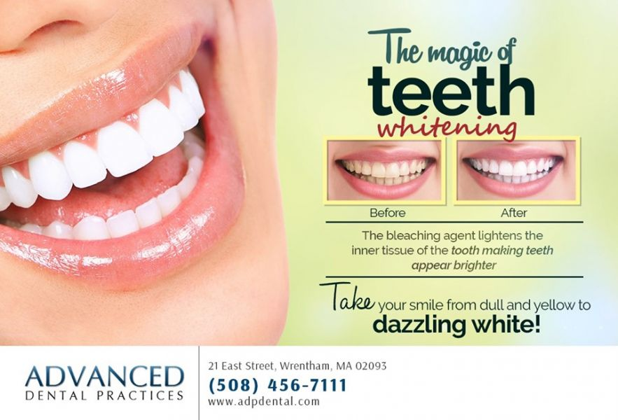 Dr. Ross Palioca Affordable Teeth Whitening in Wrentham - 02093