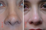 For failed nose job elsewhere contact Dr. Donald T Levine MD