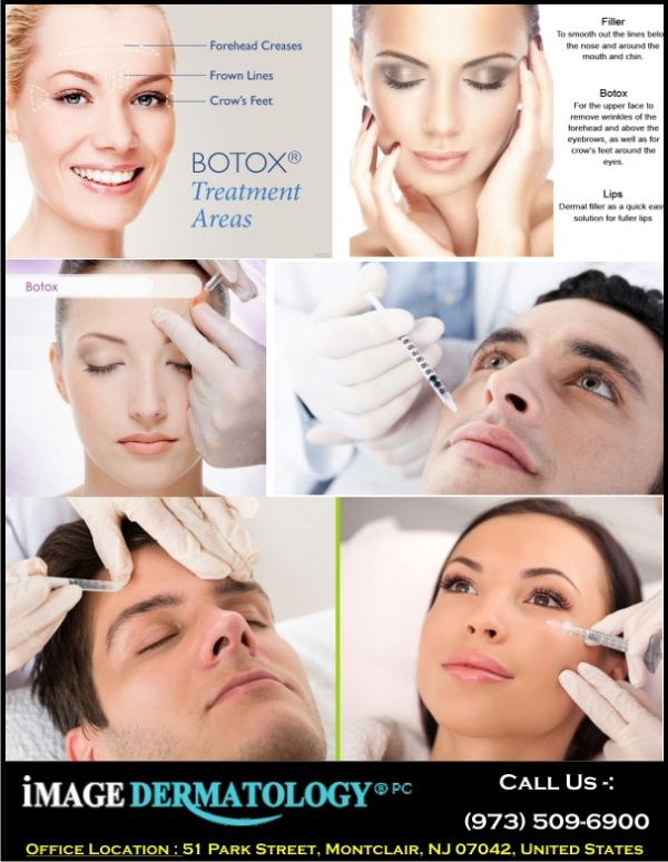 Montclair Botox Treatment