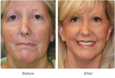 Foreheadlift by Dr. Robert Troell