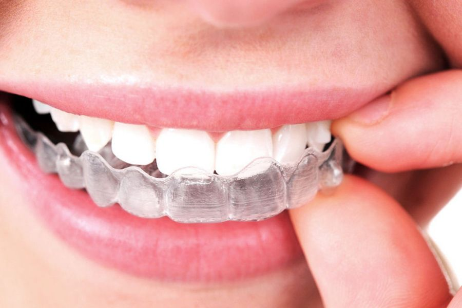 Broken Tooth Treatment in Prosper Texas | Celina Dentist