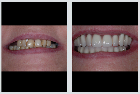 Cosmetic Dentistry in Richmond VA