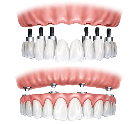 Zirconia Crowns Brooklyn