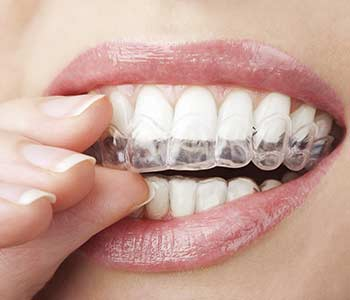 Local Beautiful Smiles with Invisalign Teeth Straightening in Los Angeles - Dr. Don Mungcal