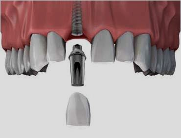 Affordable Dental Implants Costs in USA
