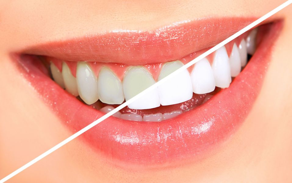 Garland Teeth Whitening Services
