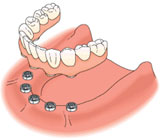 All on four dental implants solution